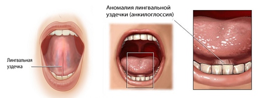 Короткая уздечка языка (скальпель или лазер?)