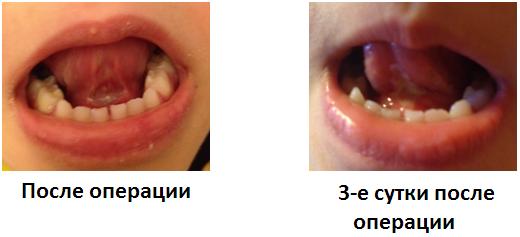 uzdechka_operaciya.png